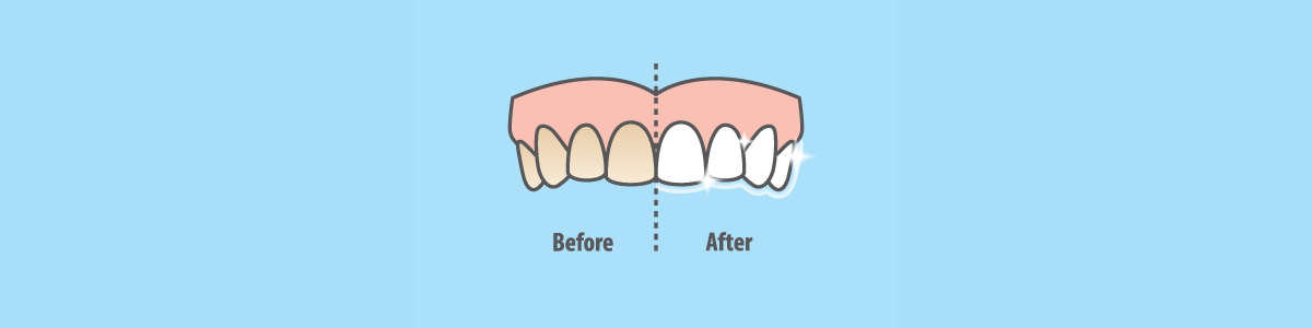 Vector Image Teeth Whitening